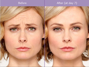 scg-skin-before-after-from-botox-annie